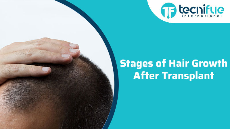 Stages of Hair Growth After Transplant