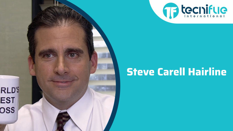 Steve Carell Hairline, Steve Carell Hairline
