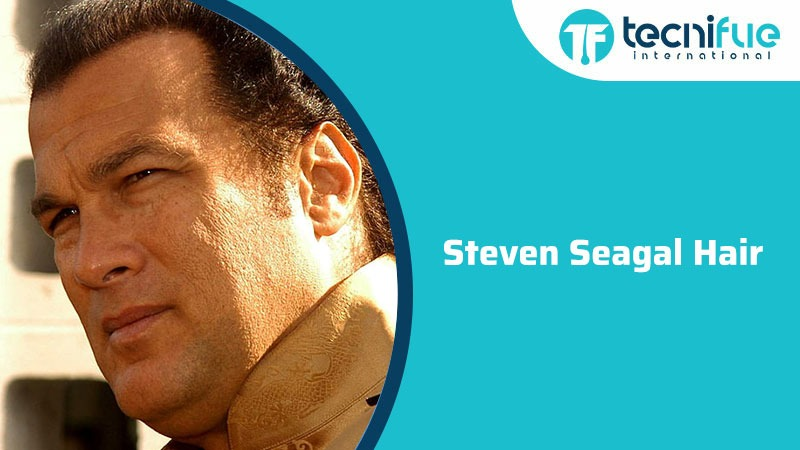 Steven Seagal Hair, Steven Seagal Hair