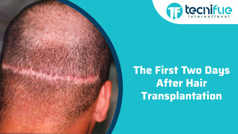 The First Two Days After Hair Transplantation