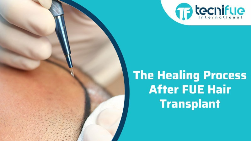The Healing Process After FUE Hair Transplant