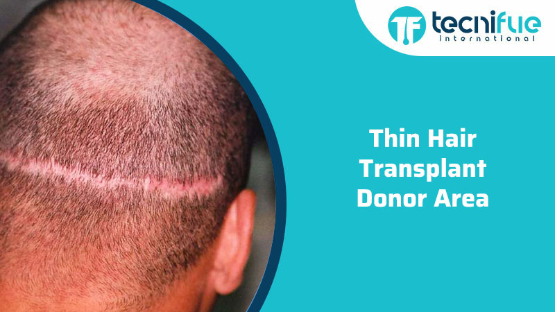 Thin Hair Transplant Donor Area, Thin Hair Transplant Donor Area