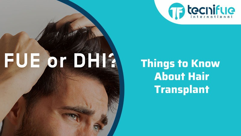 Things to Know About Hair Transplant, Things to Know About Hair Transplant