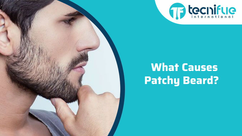 What Causes Patchy Beard