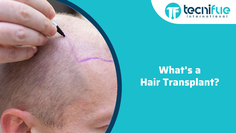 What's a Hair Transplant?