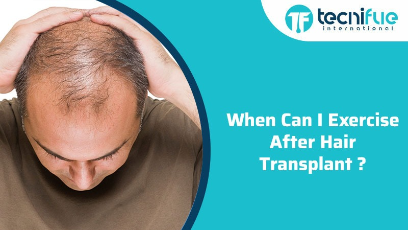 When Can I Exercise After Hair Transplant?