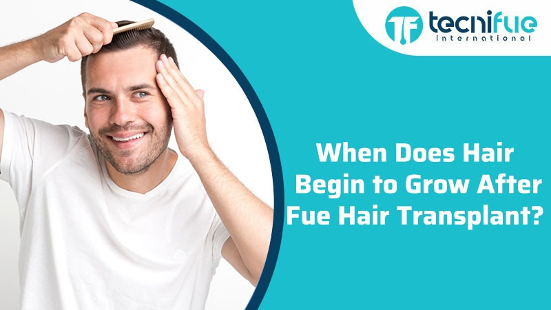 When Does Hair Begin to Grow After FUE Hair Transplant?, When Does Hair Begin to Grow After FUE Hair Transplant?