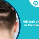 Will Hair Grow Again In The Donor Area