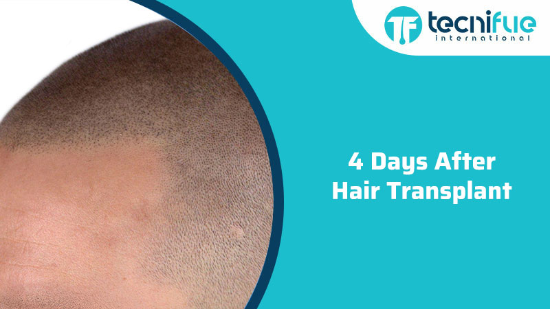 4 Days After Hair Transplant, 4 Days After Hair Transplant