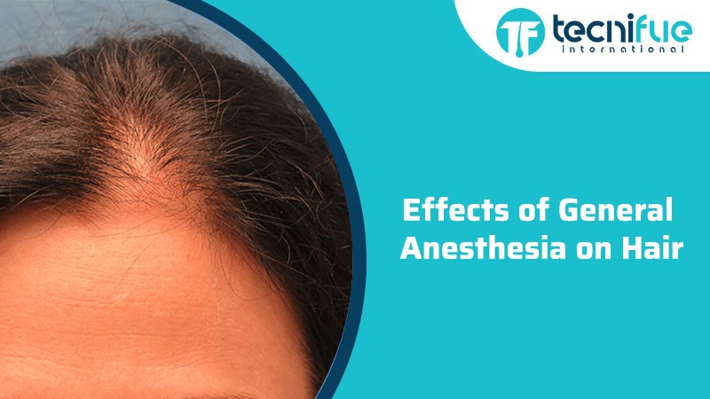 Effects Of General Anesthesia On Hair
