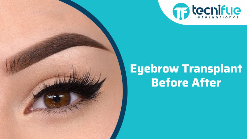 Eyebrow Transplant: Before & After, Eyebrow Transplant: Before & After