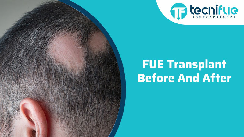 FUE Before and After