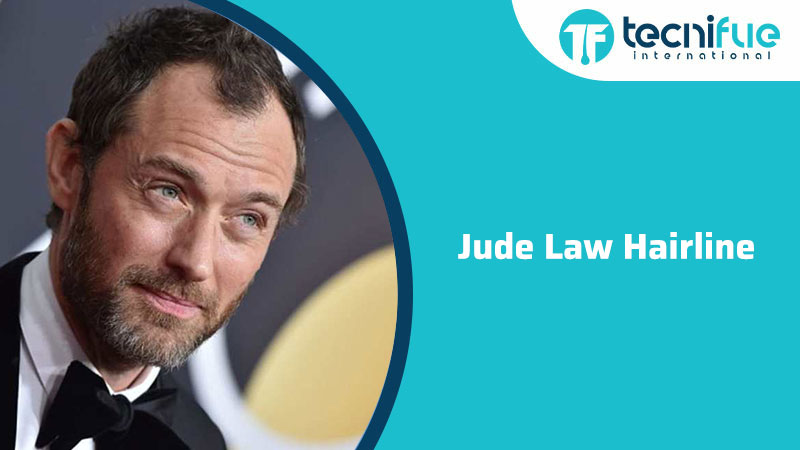 Jude Law Hairline, Jude Law Hairline