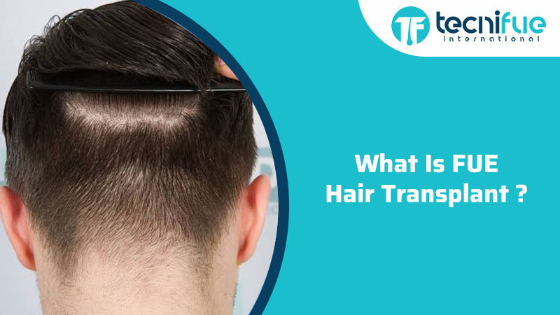 What Is FUE Hair Transplant?, What Is FUE Hair Transplant?