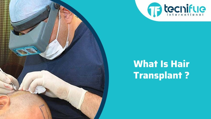 What Is Hair Transplant?