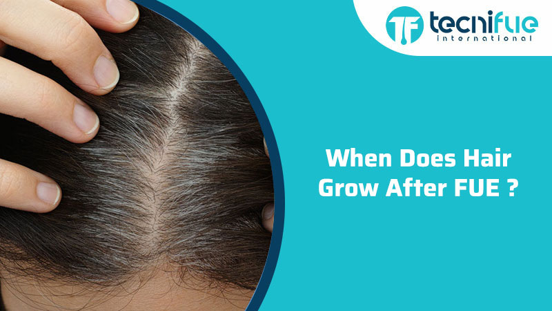 When Does Hair Grow After FUE, When Does Hair Grow After FUE?