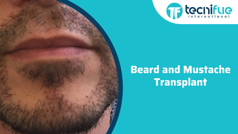 Beard and Mustache Transplant, Beard and Mustache Transplant