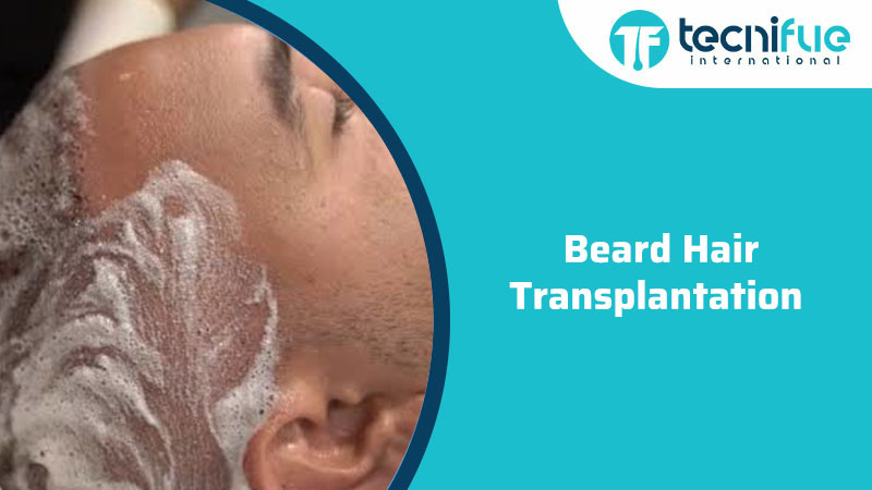 Beard Hair Transplantation , Beard Hair Transplantation