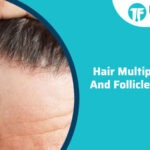 Hair Multiplication And Follicle Banking