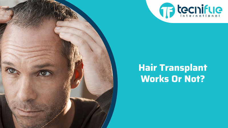 Hair Transplant Works Or Not?