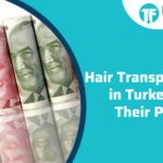 Hair Transplantation in Turkey and Their Prices