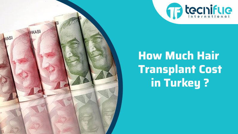 How Much Hair Transplant Cost in Turkey