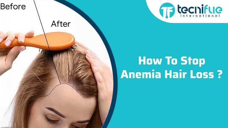 HOW TO STOP ANEMIA HAIR LOSS
