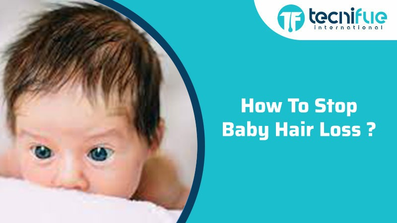 HOW TO STOP BABY HAIR LOSS