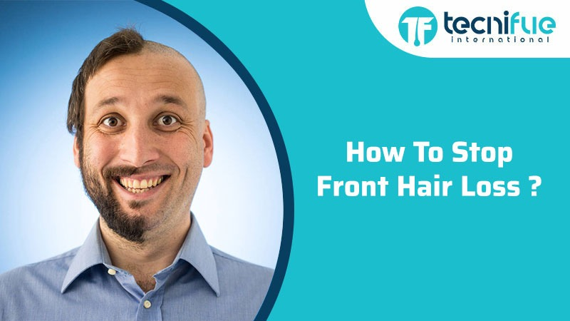HOW TO STOP FRONT HAIR LOSS
