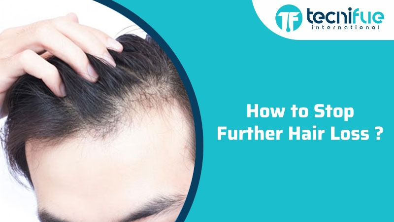 How to Stop Further Hair Loss