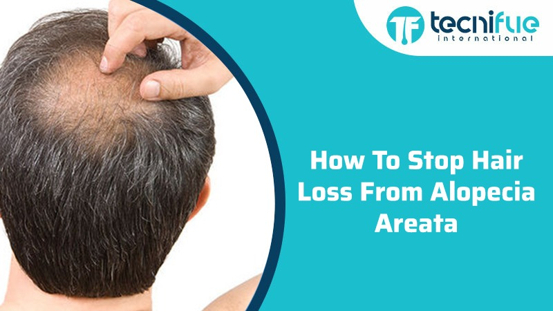 How To Stop Hair Loss From Alopecia Areata
