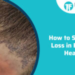 How to Stop Hair Loss in Front of Head
