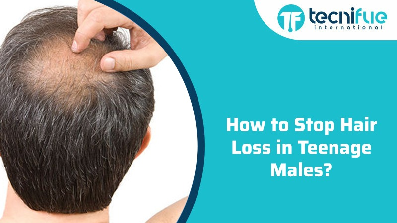 How To Stop Hair Loss In Teenage Males?