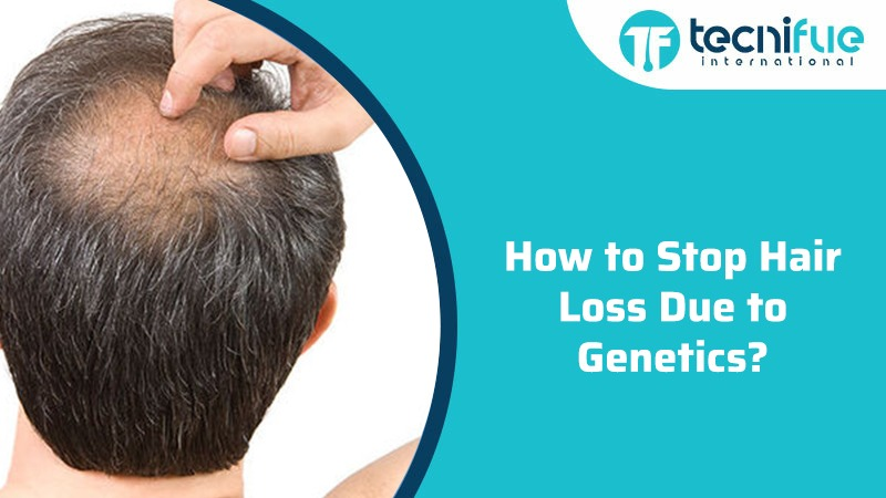 How to Stop Hair Loss Due to Genetics