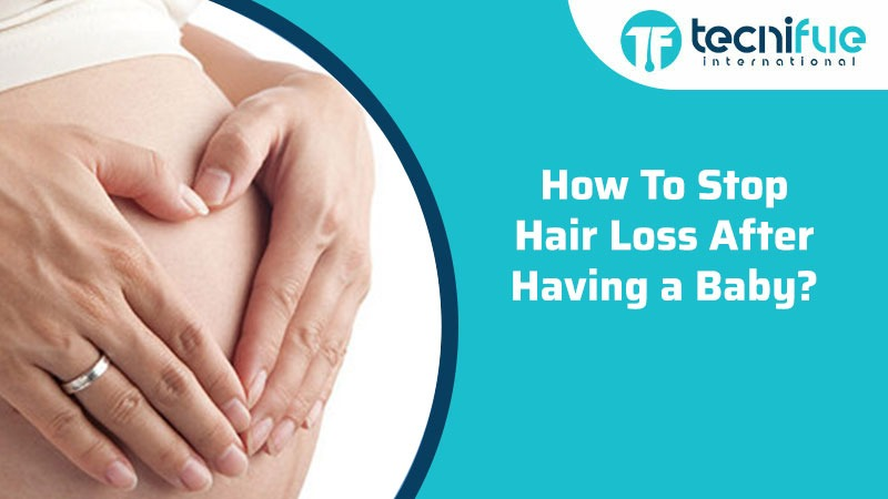 HOW TO STOP HAIR LOSS AFTER HAVING A BABY?