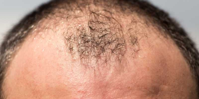 how-to-regrow-hair-for-men