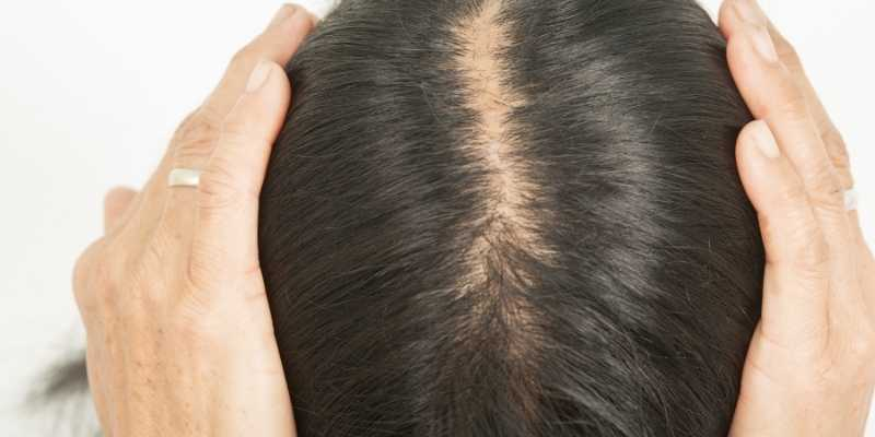hair-loss-front-of-head-female